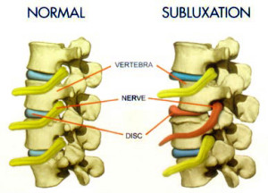 Study Suggests Most Subluxations Do Not Cause Symptoms - Austin TX Chiropractor best yelp google reviews